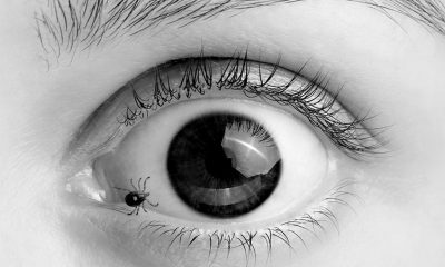 One OD's Encounter Gives A Whole New Meaning to 'Tick of the Eye'