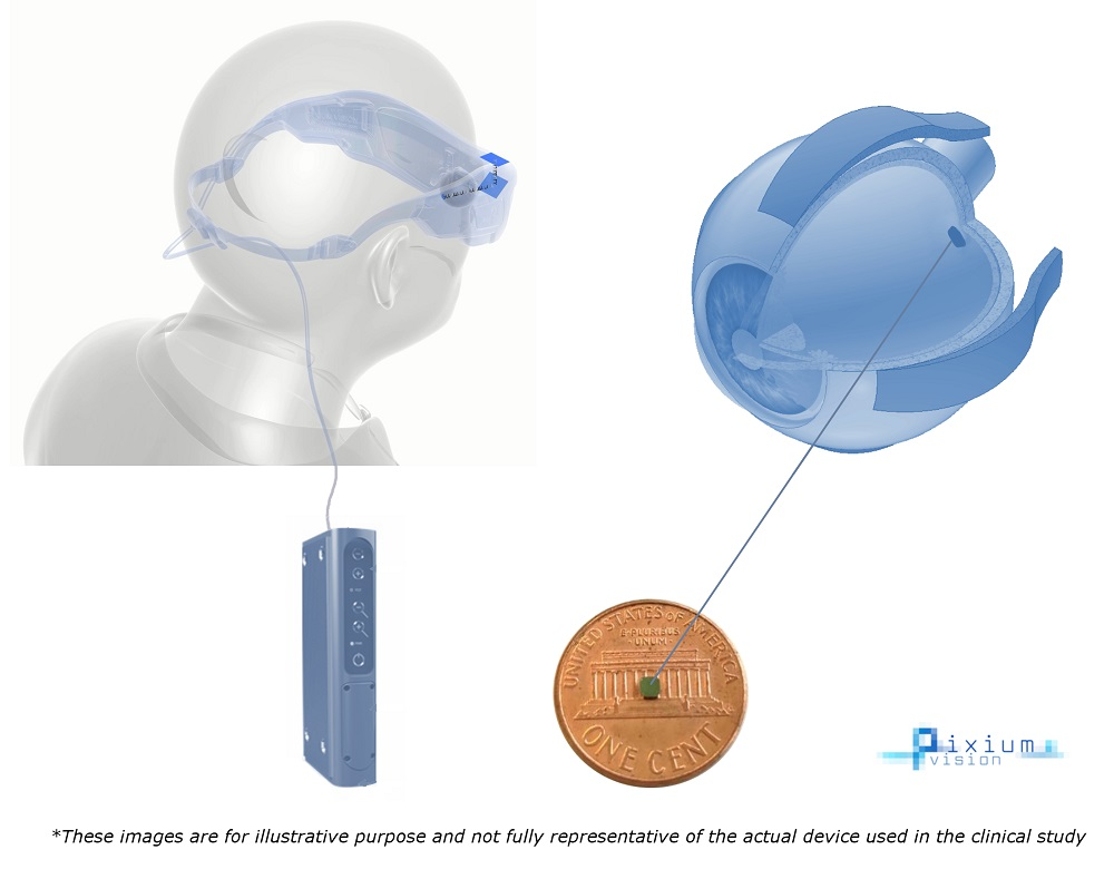 First US Patient Gets Wireless Retinal Device Implant