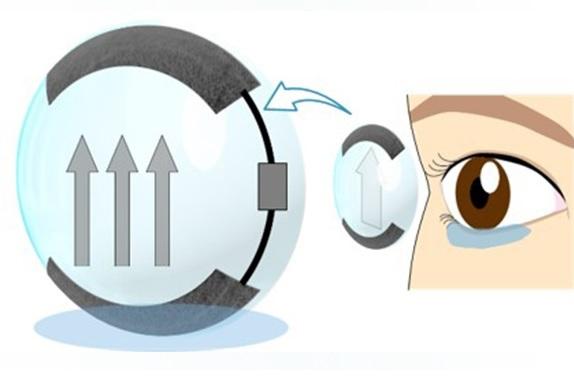 Moisturizing Contact Lenses