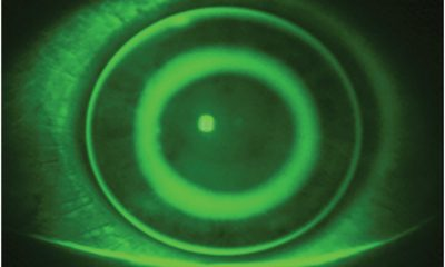 Art Optical MOONLENS Overnight Orthokeratology Contact Lens System