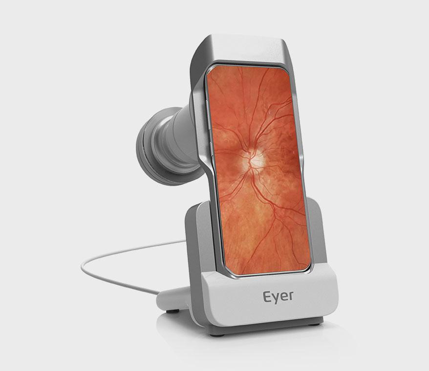 Retinal Camera Eyer
