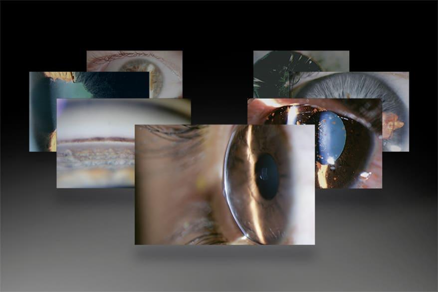 Haag-Streit Diagnostics Announces 3rd 'Slit Lamp Imaging Competition'