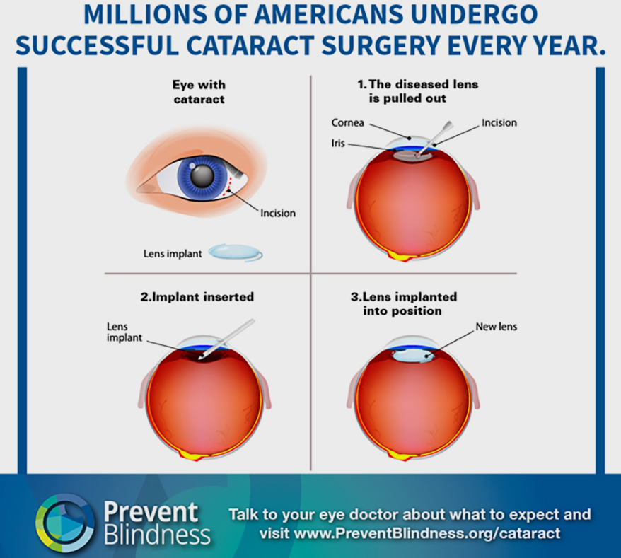 Bausch + Lomb and Prevent Blindness Team Up for Cataract Awareness Month